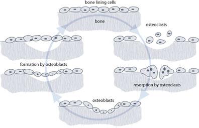 boneabsorption.jpg